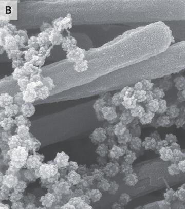Dikkat çeken araştırma: Koronavirüs vücudu böyle işgal ediyor!